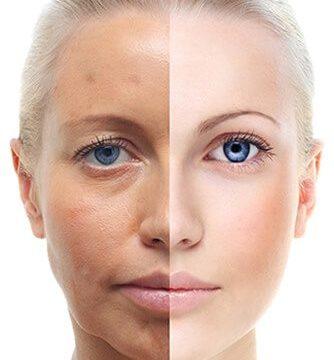 Efectele-Tratamentului-cu-Acid-Hialuronic-asupra-Ridurilor-Produs-Original-cu-Concentratie-Mare